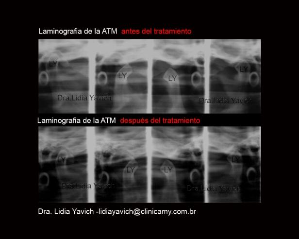 13  A LAMINOGRAFIA COMPARATIVO CRISTIANE KELLY