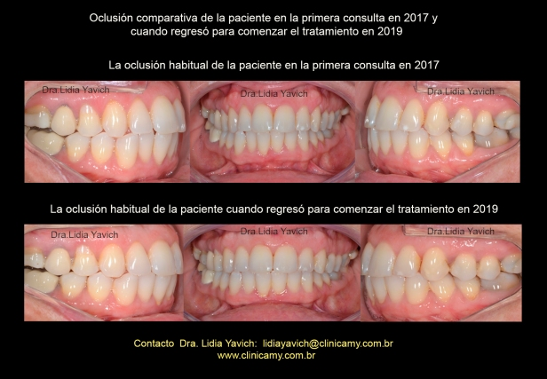 21 OCLUSOES COMPARATIVAS 2017 2019