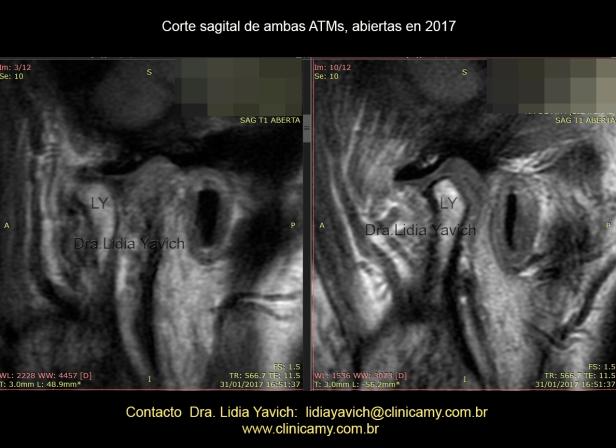 DIREITA E ESQUERDA ABERTA 2017