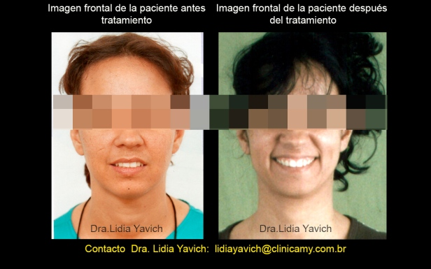 27 fase frontal